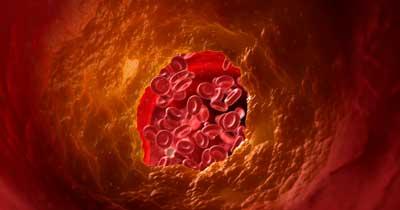 Colesterolo Riso rosso fementato Integratore