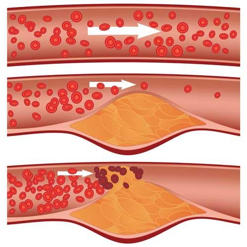 Colesterolo Riso rosso fementato